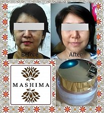 Buy Anti Melasma Whitening Botanic Brighten Bleach Cream Dark Skin Care Natural Herb