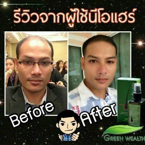 Neo Hair Lotion Growth Root Hair Loss Tonic 120 ML (Uk Hermes World Free Ship)