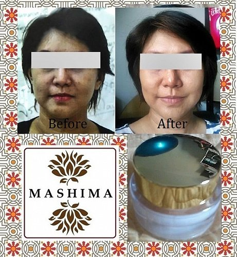 Anti Melasma Whitening Botanic Brighten Bleach Cream Dark Skin Care Natural Herb